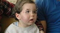 Tekirdağ'da 1,5 yaşındaki kız çocuğuna kreşte dayak iddiası