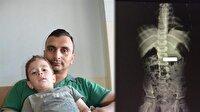 Kumanda pilini göremeyen aile hastaneye koştu