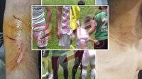 Amedsporlu Mansur Çalar futboldan men edildi