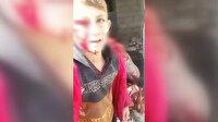 Esed'in bombardımanında yaralanan çocuklar izleyenlerin yüreklerini sızlattı
