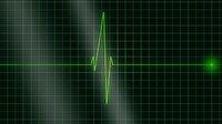 İspanya'da 6 buçuk saat kalbi duran kadın hayata döndükten 11 gün sonra taburcu oldu