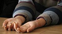 Akdeniz Üniversitesi Hastanesi çift kol naklini gerçekleştirdi: Elimi kolumu sallayarak yürümek hayalim