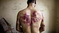 Alman mahkemesinde Esed rejiminin işkence yöntemleri anlatıldı