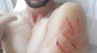 Bilecikli genç dehşeti yaşadı: Ayı saldıran köpekleri kurtardı