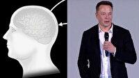 Elon Musk yeni çılgın projesi Neuralink'i tanıttı