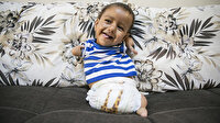 Kolları ve ayakları olmayan Suriyeli Muhammed bebek Türkiye'de şifa bulacak