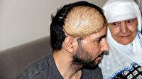 Ölümle burun buruna gelen Kahraman Gazi, Türkiye'de ilk kez yapılan yöntemle sağlığına kavuştu
