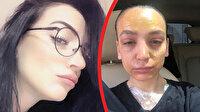 Lavabo açıcı ile yaralanan kadın, ünlü temizlik firmasına dava açtı