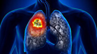 Multidisipliner yaklaşım hayat kurtarıyor: Akciğer kanserinde vakit kaybetmenden hızlı tanı ve doğru tedavi mümkün