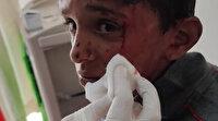 10 yaşındaki çocuğa öldüresiye dayak: Oğlunu hastanede tesadüfen gördü
