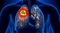 Ailesinde akciğer kanseri olanlar için risk artıyor: Bu belirtiler varsa dikkat!
