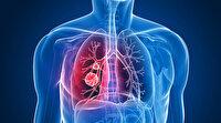 Erkeklerde birinci kadınlarda ikinci ölümcül kanser türü: Sigara kullanımına bağlı akciğer kanserinde umut artıyor!