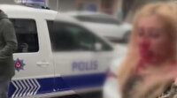 Gaziosmanpaşa'da kadına kafa atarak kanlar içinde bıraktı