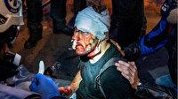 Paris'te polis şiddetine maruz kalan Suriyeli gazeteci Al Halbi o anları anlattı: Polis copla yüzüme vurdu