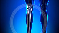 Boy uzatma ameliyatına ilgi arttı: Hangi kemikler uzatılabiliyor?
