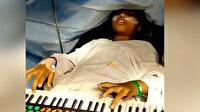 Hindistan'da dokuz yaşındaki kız beyin ameliyatı sırasında altı saat piyano çaldı