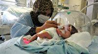 Kordon dolanması sonucu ayağını kaybeden ve 6 aylıkken doğan parmak bebek, yaşama tutunmayı başardı