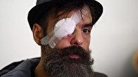 Sarı yeleklilerin liderlerinden Rodrigues: Fransız hükümeti ve polis hayatımı mahvetti