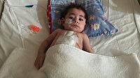 Dünyada 33 Türkiye'de ikinci vaka: 5 aylık minik bebeğin kalbine Türk doktordan 'zırh'