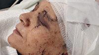 Satırlı dehşet: Çalışmasını istemediği eşinin kulağını, parmağını kesti