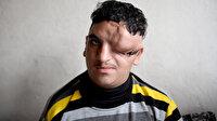 Başında şekil bozukluğuyla dünyaya gelen Mehmet tedavi olmak istiyor
