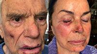 Adidas'ın eski sahibi Bernard Tapie ve eşi, 4 hırsız tarafından rehin alınıp darp edildi