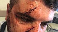 Muştalı yol verme kavgası: Taksiciyi döven şoförü linç etmeye kalktılar
