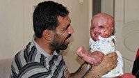'Yüzde 90 yaşamaz' denilen Delal bebek şimdi annesini bekliyor