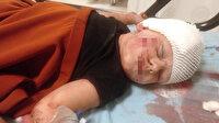 Antalya'da köpek dehşeti: Küçük Yağız ölümden döndü