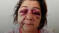 'Park bakımsız' diyen kadını CHP'li Başkan Ahmet Latif Karadeniz'in adamları dövdü