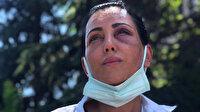 Eski sevgilisinin takside dövdüğü Habibe: 20 dakika boyunca darp etti