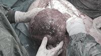 Karnından ikiz bebek büyüklüğünde tümör çıkarıldı: Doktorlar şaşkına döndü