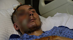 Trafik kazasında tanınmayacak hale gelen hasta 12 saat içinde taburcu edildi: Ailesi gözyaşına boğuldu