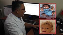 Türk doktor keşfetti: Çocuklardaki hastalık tıp literatürüne soyismiyle geçti