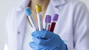 ABD'de koronavirüsten ölenleri sayısı giderek artıyor