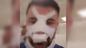 Bayram günü sağlık çalışanının burnunu kırdı, serbest kaldı