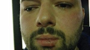 Almanya'da ırkçı saldırı: Polisler Türk iş adamını darbetti