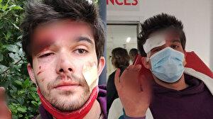 Fransız aktivist İsrail'e tepki gösterdiği için ülkesinde saldırıya uğradı