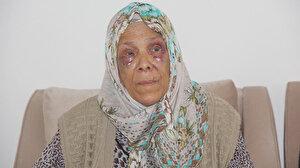 Dolandırıcılar tarafından öldüresiye dövülen yaşlı kadın: Beni öldü sanıp bıraktılar
