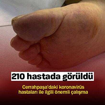 210 hastada görüldü