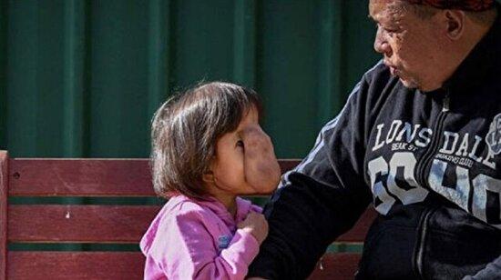 Yıllarca hapis hayatı yaşayan küçük kızın artık yüzü gülüyor
