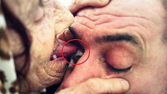 Hastaların gözlerini yalayarak körlüğü iyileştiren kadın: Hava Celebic