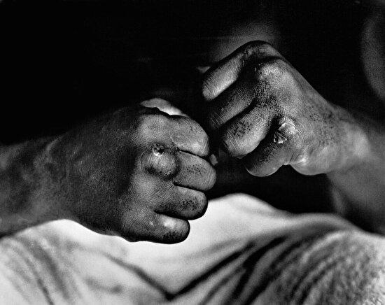 Muhammed Ali'nin dövüşten sonra elleri, 1966 yılı