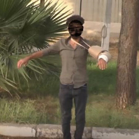 Eylem hazırlığındaki PKK'lı terörist, kolundaki alçıya yerleştirdiği bomba ile yakalandı