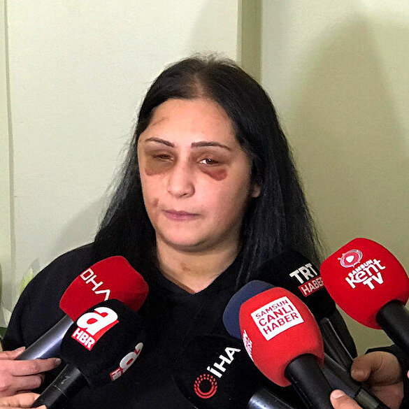Samsun'da eski eşi tarafından darp edilen kadın konuştu: Tutuklu yargılanmasını ve ceza almasını istiyorum