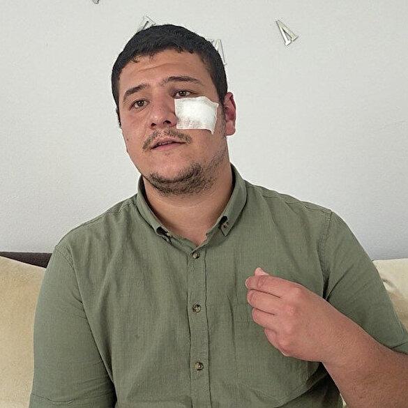 Lütfü Türkkan'ın kaçak çiftliğini görüntülerken darp edilen muhabir Akşener'i yalanladı