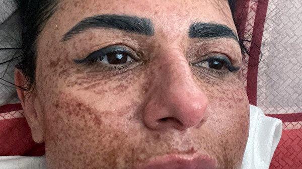 42 yaşındaki Aslı İlhan, ile ilgili görsel sonucu