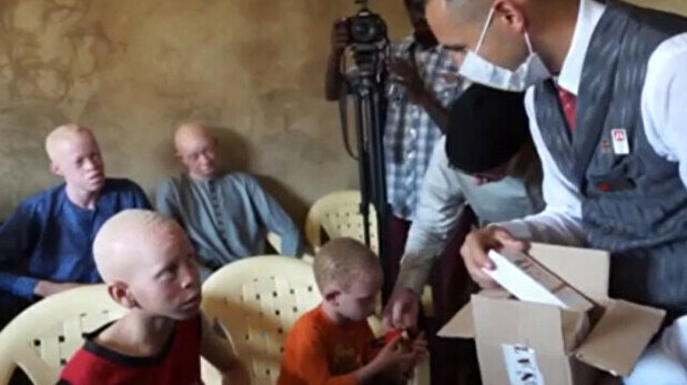 Turkey's national flag carrier helps albinos ...