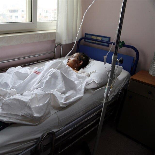 Over 240 injured Aleppans treated in Turkey