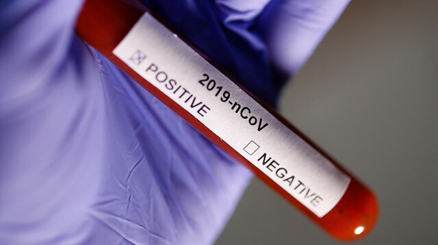 Britain confirms third case of coronavirus